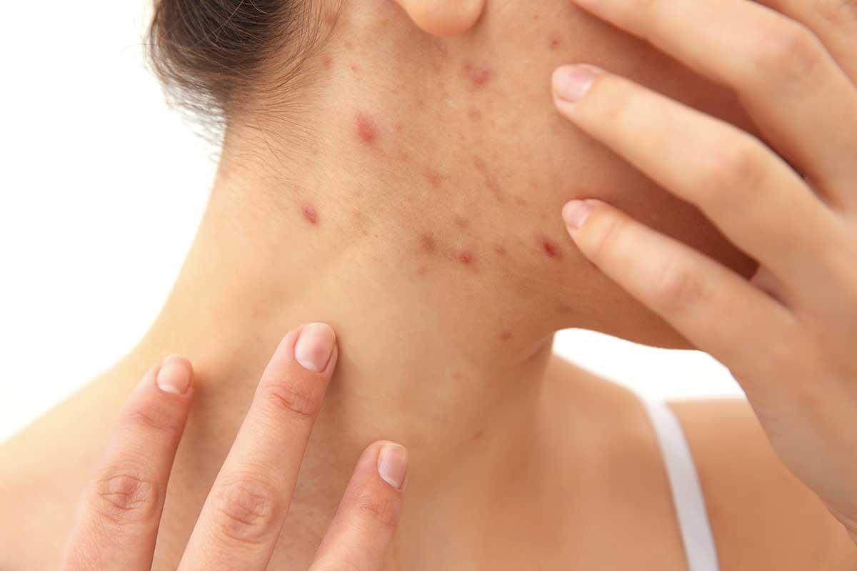 Kožní problémy zaměnitelné s akné